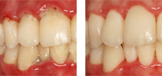 Vers le traitement parodontal