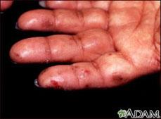 Dermatitis herpetiforme en mano