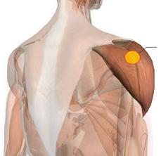 肩、腕、三角筋
