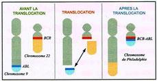 lmc frane leucemie myeloide chronique chromosome 9 22 translocation bcr abl bcr-abl anomalie génétique