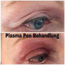 Plasma Pen Schlupflider Behandlung ohne OP - Pimp my Face -Hamburg - Bramfeld