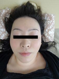 小顔整体の施術後