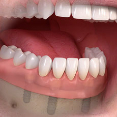 Unterkiefer Zahnersatz auf 4 Implantaten