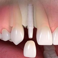 Vollkeramische Krone auf Implantat zum Ersatz eines Zahnes