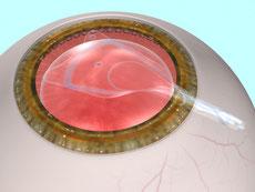 眼内レンズ手術方法2