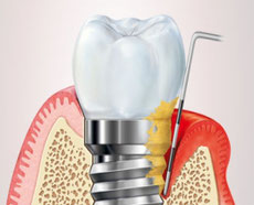 Sondierung eines Implantates mit einer Periimplantitis-Erkrankung