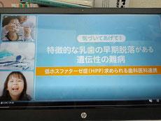 HPP(低ホスファターゼ症)茨木市 永井歯科医院 令和3年度