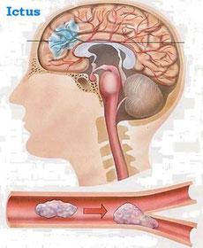 Infarto cerebral o ictus
