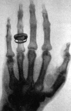 erstes Röntgen