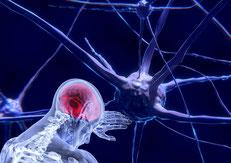 Disegno di neurone e persona con cervello infiammato