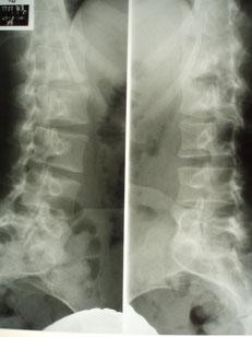 打撲 の 骨折 肋骨 違い と 肋骨 打撲