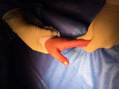 Croix du Sud, urgence chirurgie du sport, Dr Rémi, Toulouse