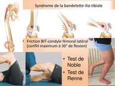 teste de noble, syndrome de l'essuie glace, podologue du sport paris