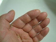 ....linke Hand..... leicht geschwollen