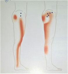 股関節痛、お尻の痛み 足の痛み 足のしびれ