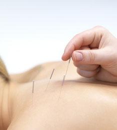 Das Bild zeigt den Einstich einer Akupunkturnadel am Rücken einer Patientin