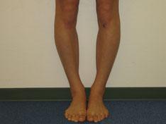 香芝の整体師の脚