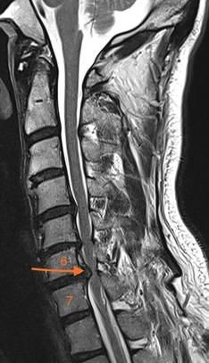 MRT HWS Halswirbelsäule Rückenmark, hochmoderne MRT Geräte, Präzise MRT-Aufnahmen HWS