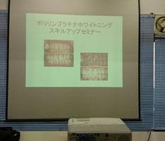 八戸市 ホワイトニング くぼた歯科