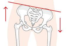 股関節、恥骨、ソケイ部痛のゆがみ