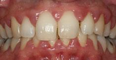 Avant traitement parodontal non chirurgical