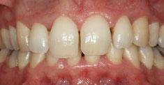 Deux mois après traitement parodontal non chirurgical