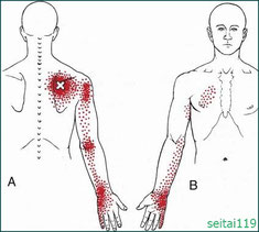肩甲骨のから腕にかけての痛み