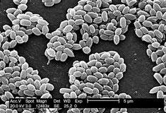 Miltvuurbacterie (bron: Pixnio)