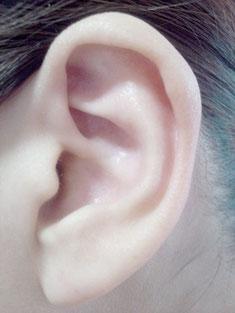 耳つぼ療法