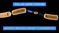 Nervenschädigung (Bild von Dr Jana CC BY 4.0  Wikimedia)
