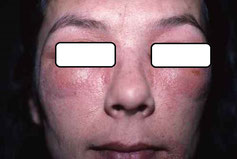 Eczema aigu à une crème solaire