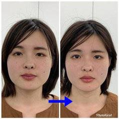 小顔矯正の見本 1