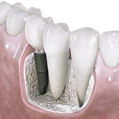 ``Bild:`` Zahnimplantat im Kieferknochen der Firma Xive oder Astra von Dentsply mit oder ohne Knochenaufau
