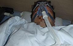 睡眠時無呼吸症群 ネーザルCPAP  熊本くまモン