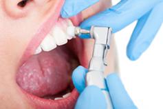Zahnarztpraxis Domsch Fluoridierung