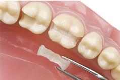Zahnarztpraxis Domsch Keramikinlays