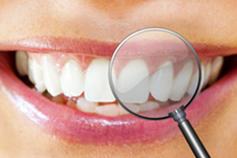 Zahnarztpraxis Domsch Zahnreinigung