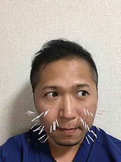 小牧 腰痛 自律神経失調症 鍼灸 美容鍼灸 たるみ むくみ