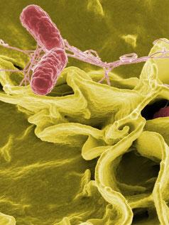 Bakterien im Rasterelektronenmikroskop