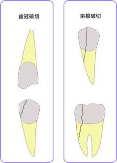 歯冠破折と歯根破折