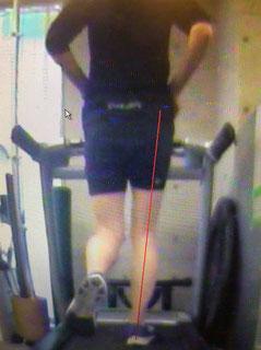 ランニングの着地の位置でも腓骨筋に負担がかかります