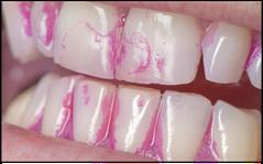 Putzkontrolle in der Zahnarztpraxis: Anfärben des Zahnbelags. (© proDente e.V.)