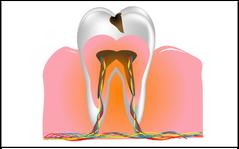 Säuren greifen den Zahnschmelz an und verursachen Karies (© arkela - Fotolia.com)