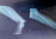 Das Röntgenbild macht es sichtbar: der Oberschenkel ist durch.