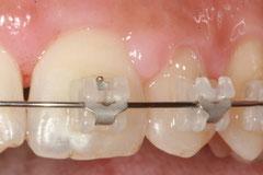 Parodontite et orthodontie © ParoSphère