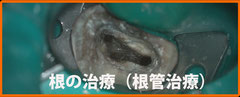 清水歯科藤沢院の根管治療