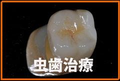 清水歯科藤沢院の虫歯治療