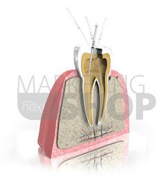 Endodontie Grafik 2
