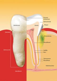 Wie Parodontose beginnt: Klicken Sie auf die Grafik, um sie zu vergrößern! (© proDente e.V.)