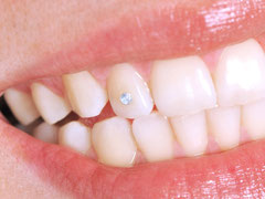 """Zahnschmuck gibt es als """"Brillis"""" (sog. Twinkles) und (weiß-)goldfarben in verschiedenen Formen (sog. Dazzlers)"""